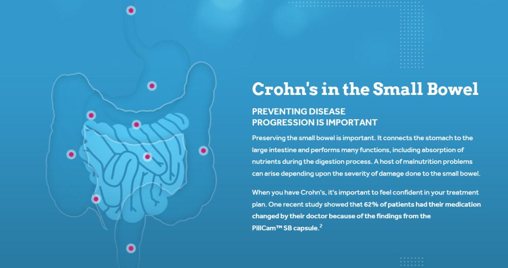 Small Bowel Crohns