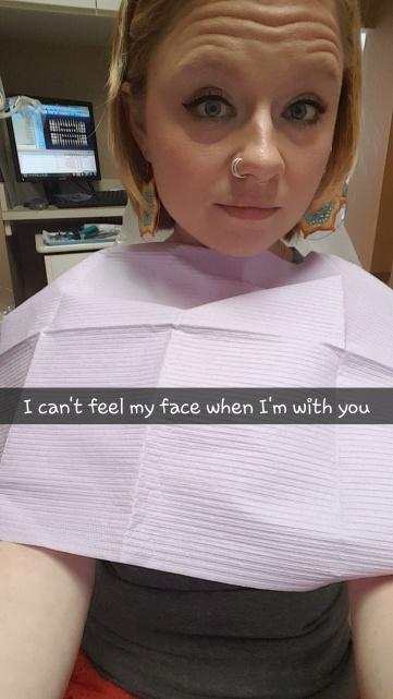 I cant feel my face dentist