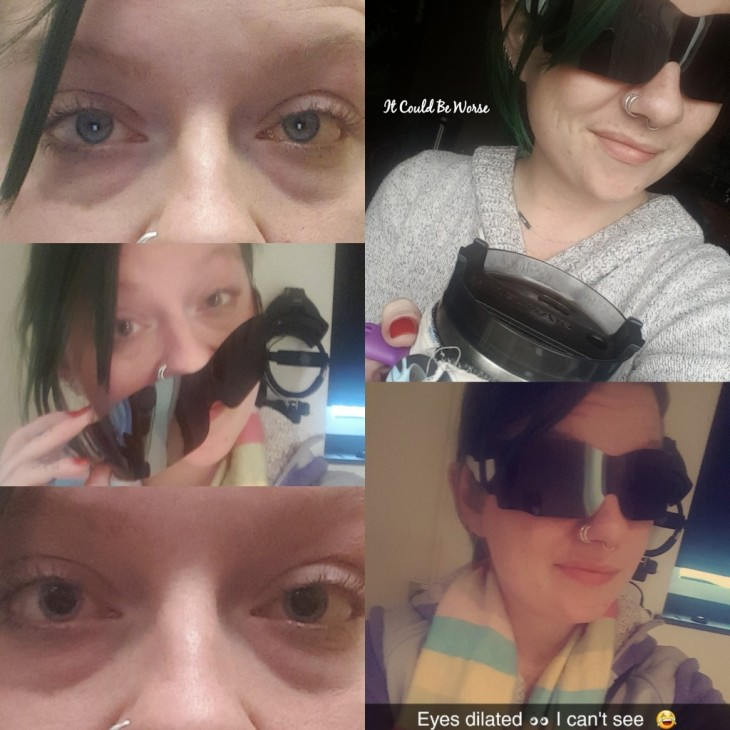 Seeing All of the Doctors - Another Month in My Crohn's Journey - eyes dilated Mary Fornoff Horsley