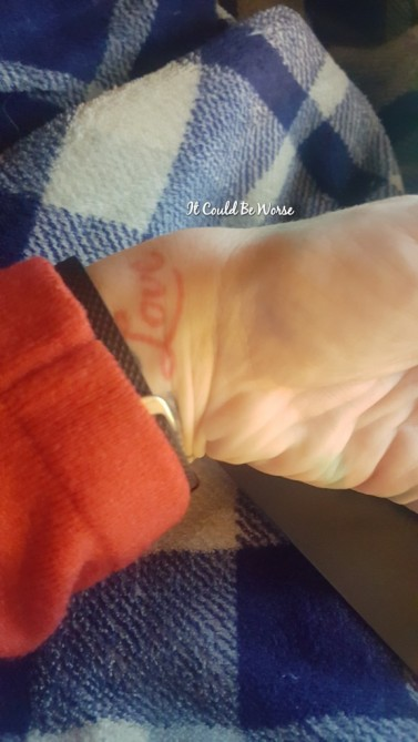 Work and Scheduling Appointments - It Could Be Worse Blog - Mary Horsley - Ganglion Cyst