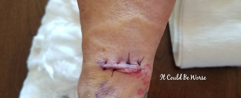 Lumpy, the Ganglion Cyst, a Trilogy – – It Could Be Worse –
