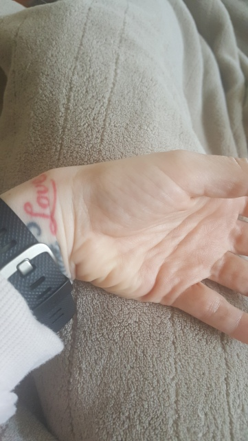 May Delays | It Could Be Worse Blog | Mary Horsley - Ganglion cyst