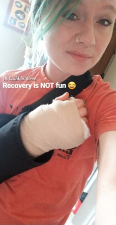 My Ganglion Cyst - The Tetralogy | IT COULD BE WORSE BLOG