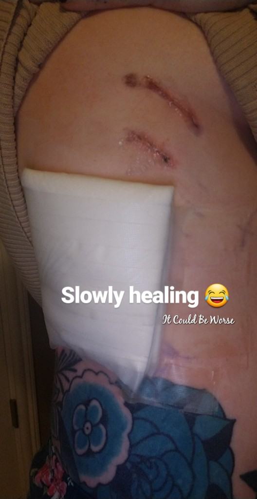 My Wonky Ribs and Neurectomy | IT COULD BE WORSE BLOG
