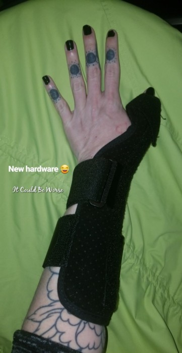 De Quervain's Tenosynovitis - Lefty | IT COULD BE WORSE BLOG