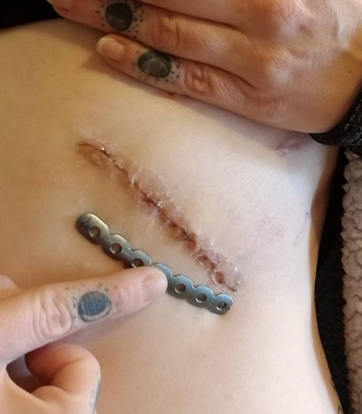 Slipping Rib Syndrome | IT COULD BE WORSE BLOG