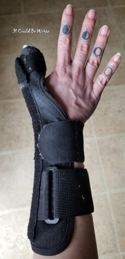 Seven Scars & My 10th Procedure