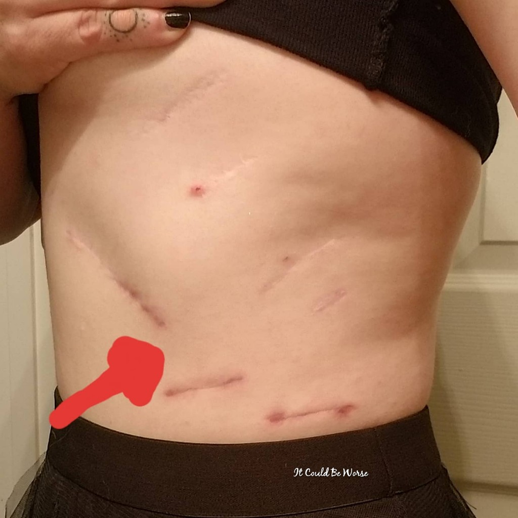 Slipping Rib Syndrome - Ribs Not Healing & WV Consult Scheduled
