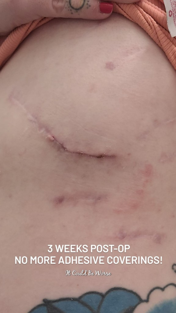 Slipping Rib Syndrome - Hansen Technique & One Month Follow-Up